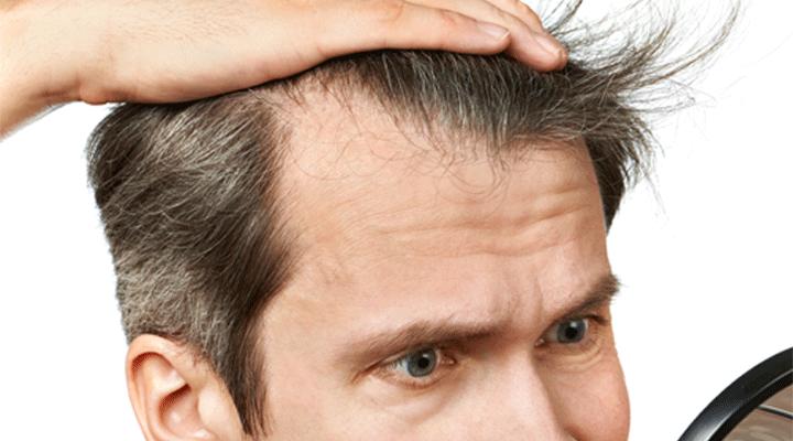 How Much Cost An Average Scalp Micropigmentation Procedure?